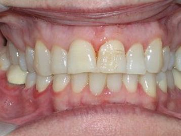 Dentures Before & After Gallery