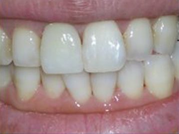 Porcelain Veneers Before & After Gallery