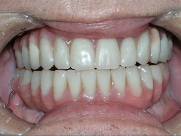 Full Mouth Reconstruction Before & After Gallery