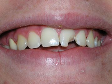 Dental Crown Before & After Gallery