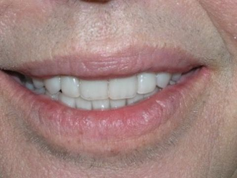 Dental Implants & Porcelain Veneers Before & After Gallery
