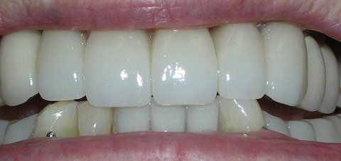 Porcelain Veneers & Partial Dentures Before & After Gallery